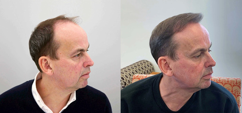 Paul Coyte before and after