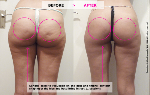 Cellulite reduction and butt lifting