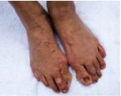 Image of foot damage from high heels