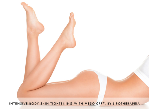 Intensive skin tightening with Meso-CRF