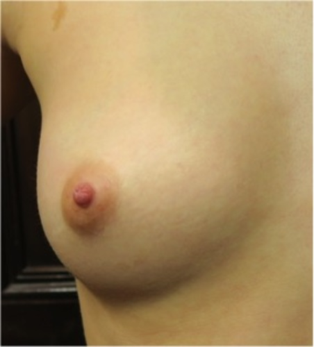nipple rated as most attractive