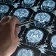 Targeting Alzheimer