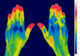 thermal image of patient's hands
