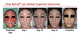 Before & After images - Patient, 12yrs